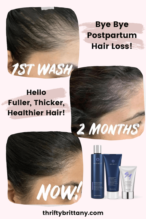 Postpartum Hair Loss Before And After Monat Thrifty Brittany